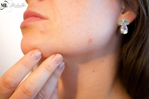 A woman with pimples on her chin - ML Delicate Beauty